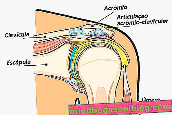 ما هو التهاب المفاصل الأخرمي الترقوي