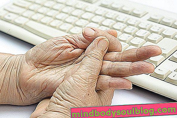 Какво представлява пръстът на спусъка и как да се лекува