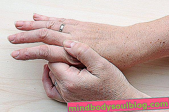 Arthrose des mains: symptômes, causes et traitement