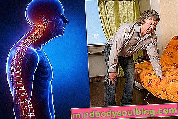 Maladie de Paget: qu'est-ce que c'est, symptômes et traitement