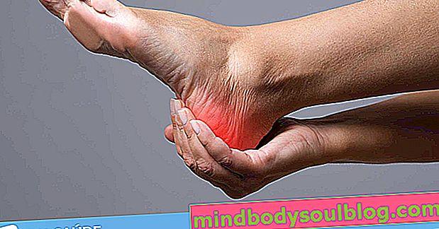 7 causes de douleur au talon et que faire dans chaque cas