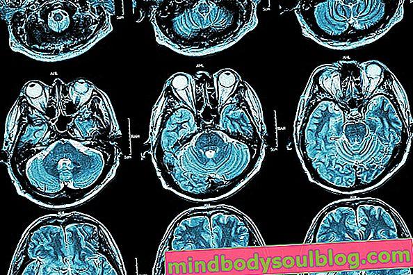 Malformation d'Arnold-Chiari: types, symptômes et mode de traitement