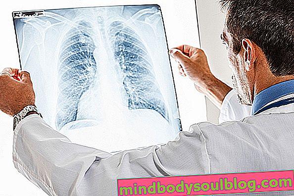 מה זה Bronchopneumonia וכיצד לטפל