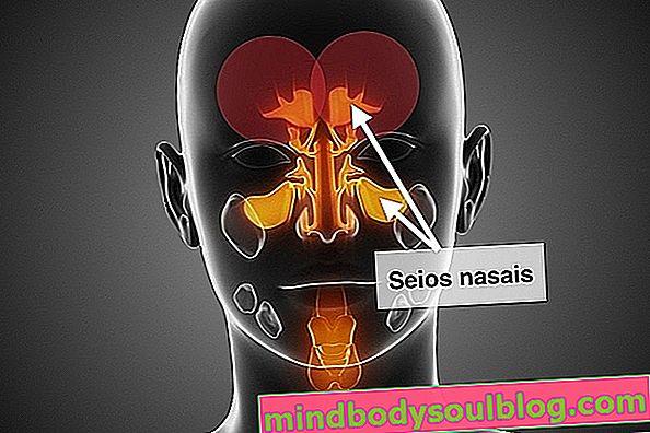 ما هو اعتلال الجيوب الأنفية والأعراض والتشخيص والعلاج