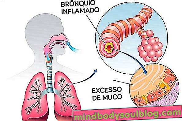 הכל על ברונכיטיס: סוגים, גורמים, תסמינים וטיפול