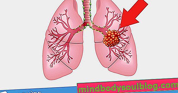 גוש בריאות: מה זה אומר ומתי זה עלול להיות סרטן
