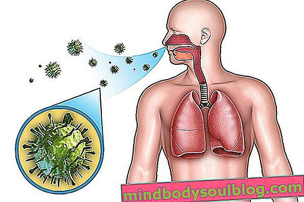 דלקת ריאות בקהילה: מהי, תסמינים וטיפול