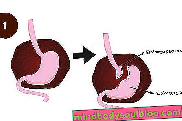 Quand faire un by-pass gastrique pour perdre du poids