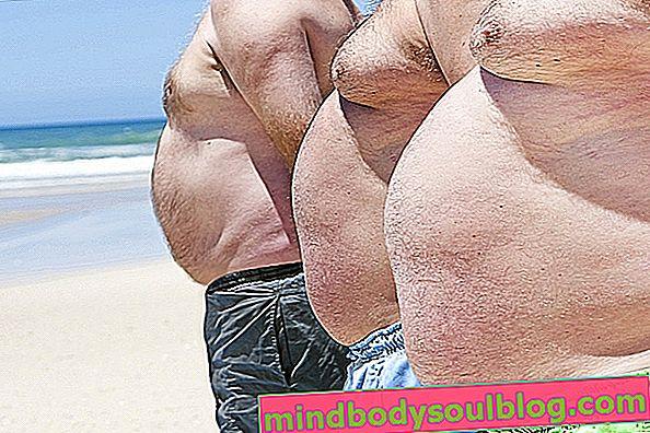 Principaux types d'obésité et comment les identifier