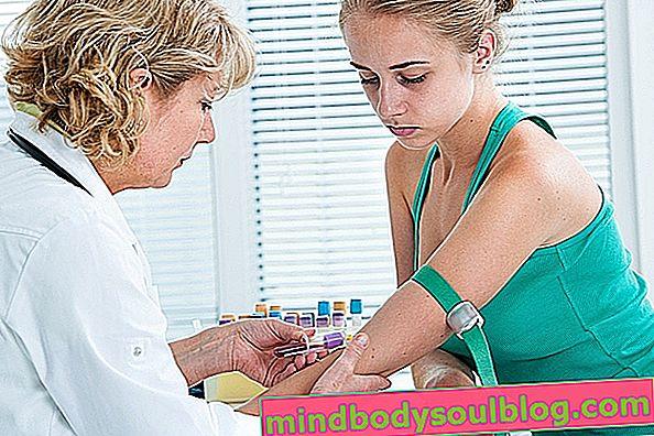Triglycéride: qu'est-ce que c'est et valeurs normales