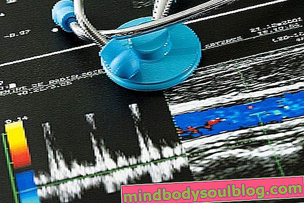 Comment l'échographie Doppler couleur est-elle effectuée et quand le faire