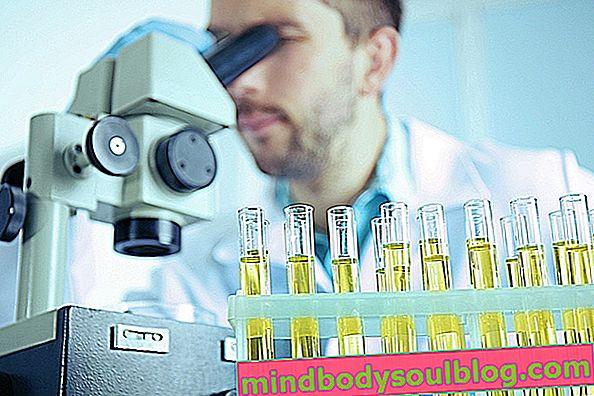 Silinder urin: tipe utama dan artinya