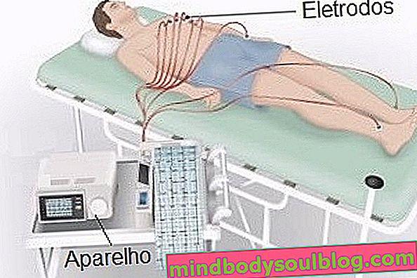 Wofür ist das Elektrokardiogramm?