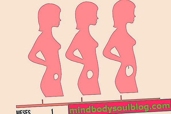 Анембрионална бременност: какво е това, как да го идентифицирам и какво да правя