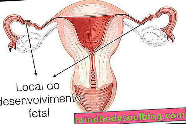 Principales causes de grossesse tubaire (extra-utérine) et comment traiter