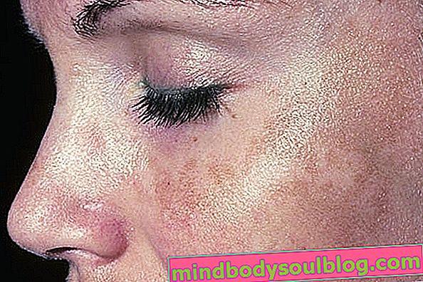 Comment éliminer les taches brunes sur votre visage pendant la grossesse