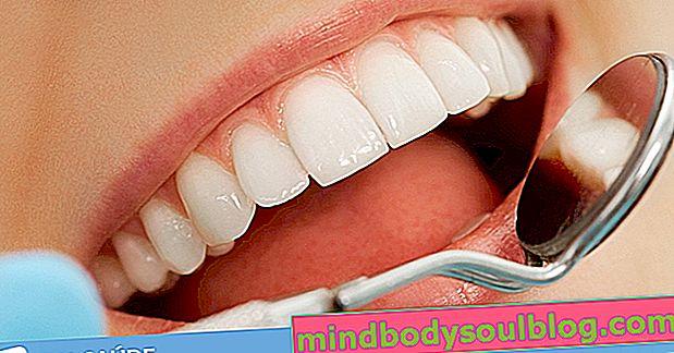 4 възможности за лечение за избелване на зъбите