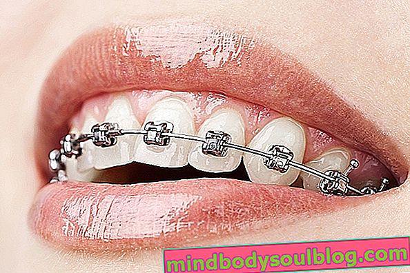 סוגי מכשור יישור שיניים וכמה זמן שימוש