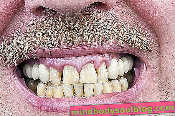 Какво представлява ретракция на венците и как да се лекува