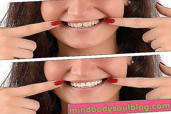 Veneer gigi yang diperbuat daripada resin atau porselin: kelebihan dan kekurangan