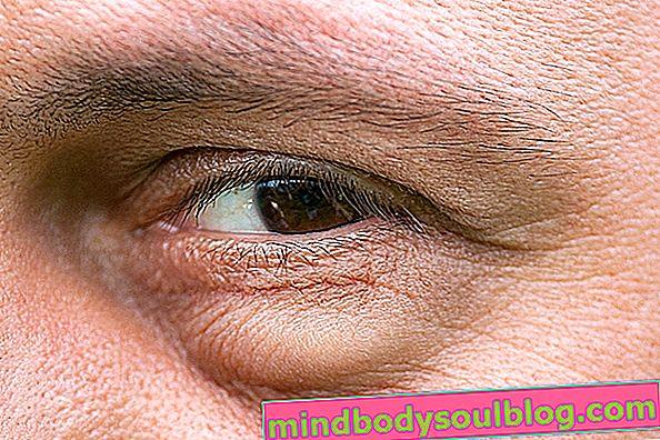 Mata dan kelopak mata bengkak: apa yang boleh dan bagaimana merawatnya