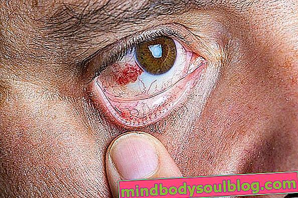 Tache rouge sur l'œil: 6 causes possibles et que faire