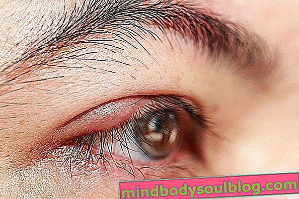 Chalazion ในตา: มันคืออะไรอาการหลักและการรักษา