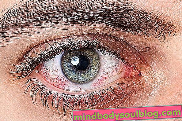 7 perubahan mata yang mungkin menunjukkan penyakit