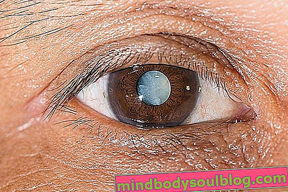Tache blanche sur l'œil: ce que cela peut être et quand aller chez le médecin