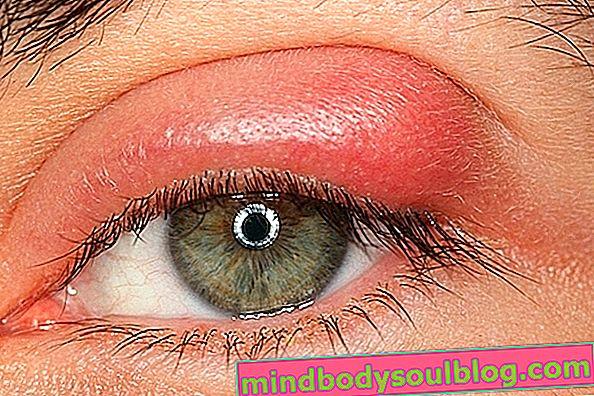 Kista di mata: 4 penyebab utama dan apa yang perlu dilakukan