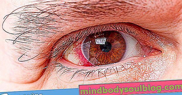 الجلوكوما: ما هو و 9 أعراض رئيسية