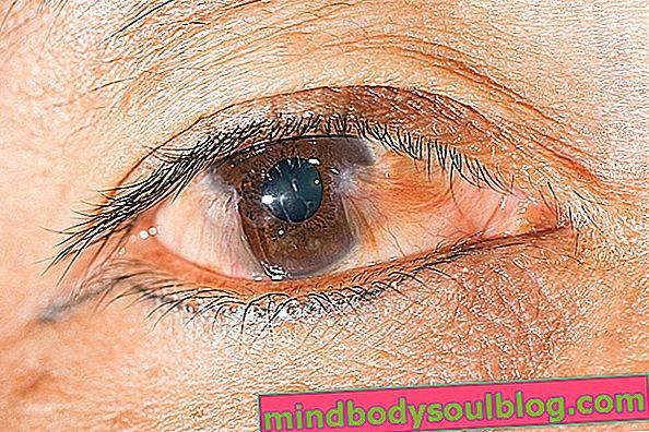 Жълто петно на окото: 3 основни причини и какво да се прави