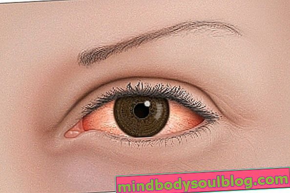 Rosacée oculaire: qu'est-ce que c'est, symptômes et traitement