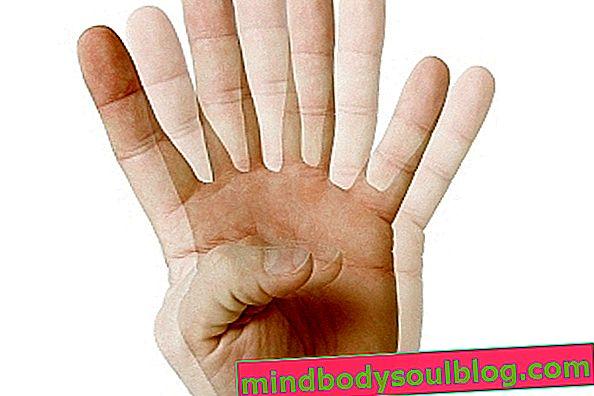 Какво е диплопия, причини и как е лечението