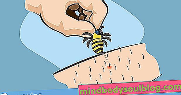 Първа помощ при ужилване от пчела или оса