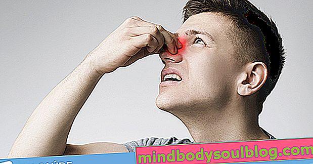 5 natürliche Möglichkeiten, die Nase zu verstopfen
