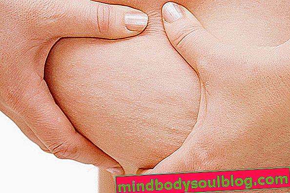 6 conseils essentiels pour lutter contre la cellulite