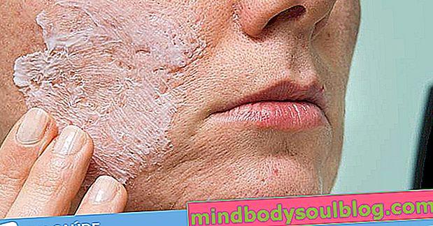 Домашни лечения за премахване на белези от акне по лицето