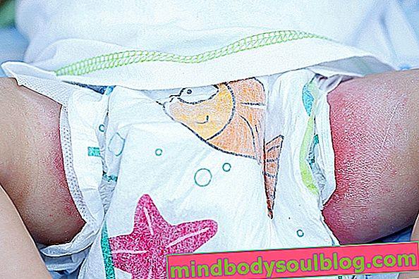 كيفية علاج 7 مشاكل جلدية شائعة عند الرضيع