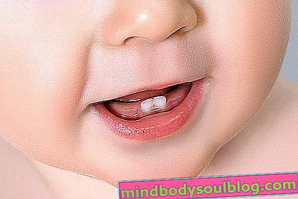 Ubat untuk menghilangkan rasa sakit dari kelahiran gigi