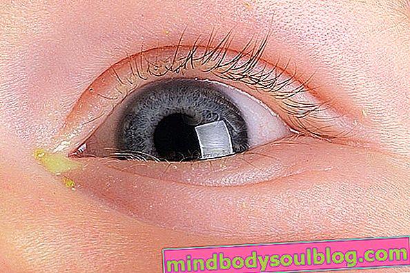 Apa yang bisa menjadi Eyes Remelando in Baby