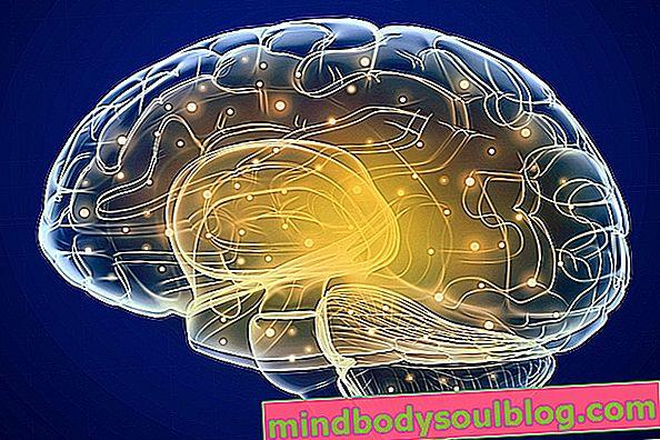 Apakah keterbelakangan mental, sebab, ciri dan jangka hayat
