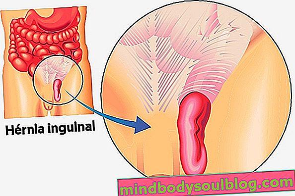 الفتق الإربي: الأعراض وكيف تتم الجراحة والشفاء