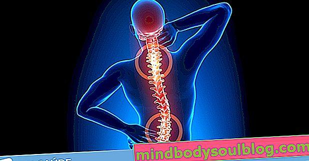 Rückenschmerzen: 8 Hauptursachen und was zu tun ist