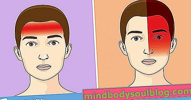 Différents types de maux de tête, symptômes et leurs causes