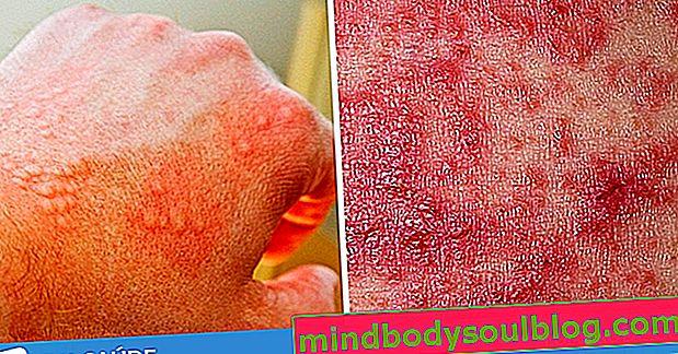 14 Krankheiten, die rote Flecken auf der Haut verursachen