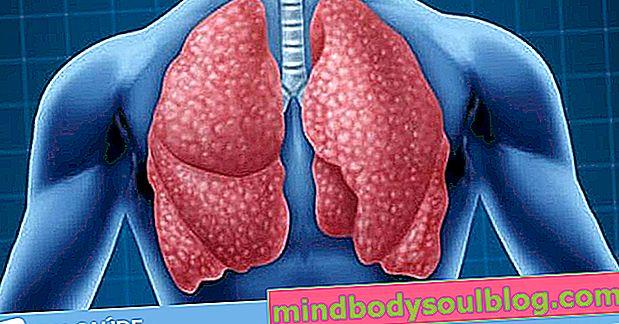 Douleur pulmonaire: 6 causes principales et que faire