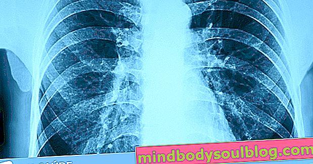 Douleur aux côtes: 6 causes principales et que faire