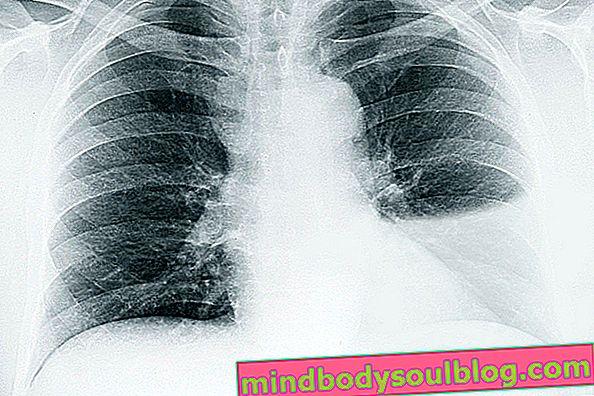 Symptômes et confirmer l'eau dans le poumon