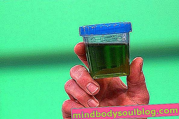 Urine verte: 4 causes principales et que faire